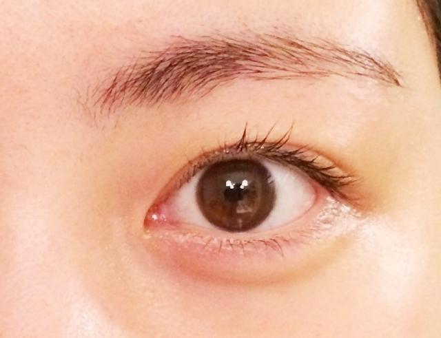 目に黄色いできものが瞼裂斑できたらかも!
