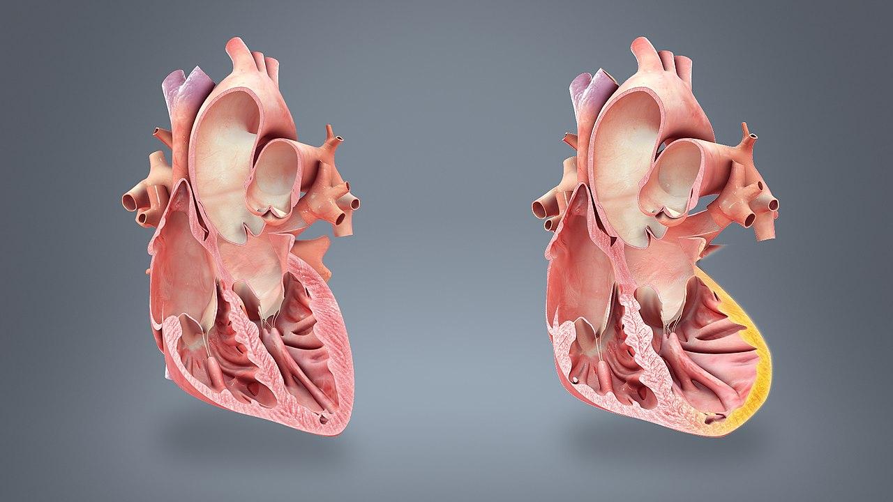 постинфарктный синдром дресслера