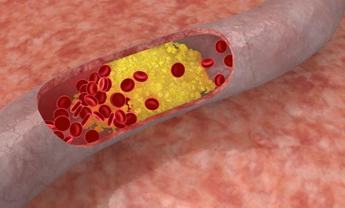 Проявление атеросклероза сосудов
