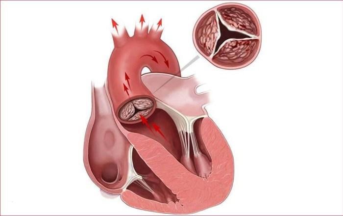 Суть атеросклероза сердца