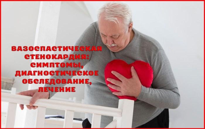 Симптомы, диагностика и лечение вазоспастической стенокардии