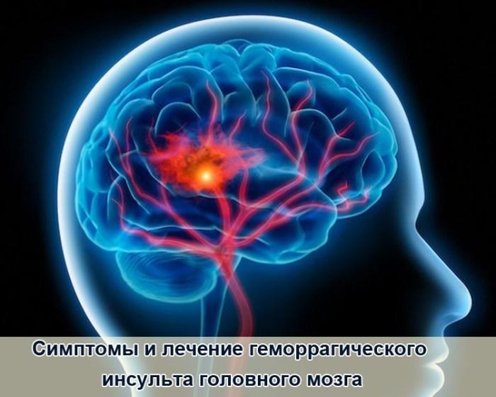 Симптомы и лечение геморрагического инсульта головного мозга