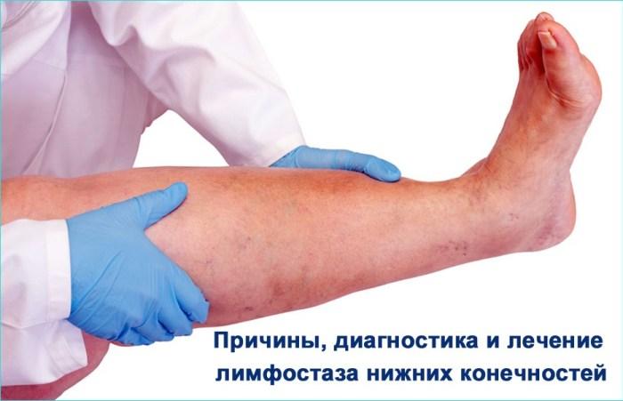 Лечение при лимфостазе нижних конечностей