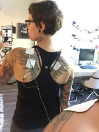 TENS unit attached to trapezius trigger points