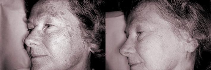 Före och efter behandlingen