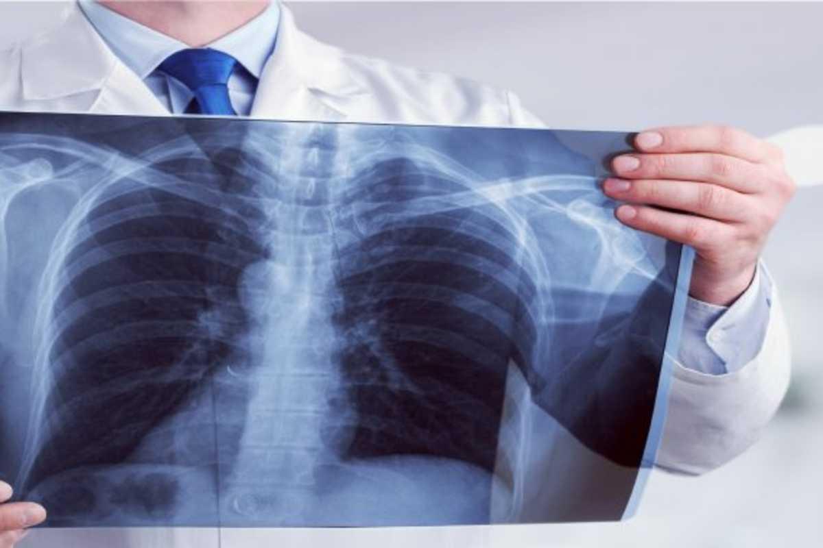 tüdő tüdőgyulladás