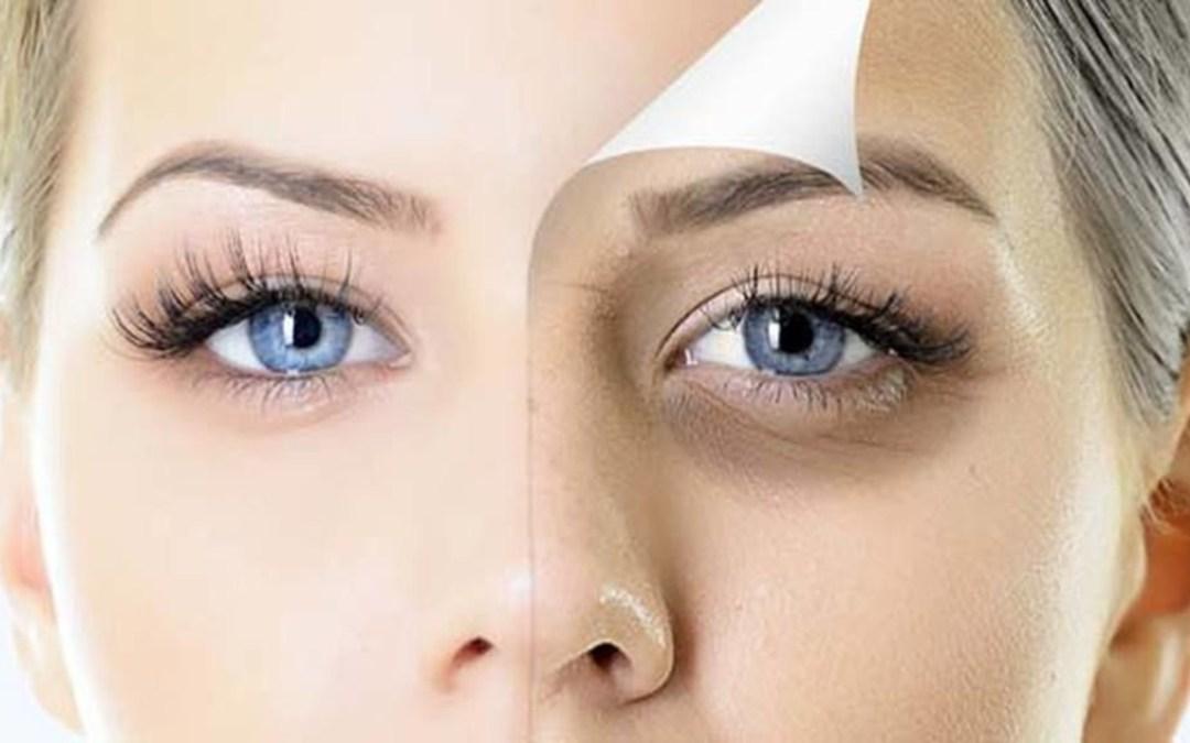 Mitől nőnek sötét karikák a szemünk alatt?