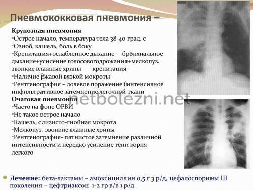Pneumokock typ av lunginflammation