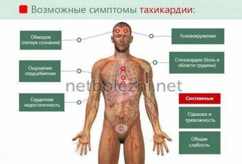 Συμπτώματα της εμφάνισης των ταχικάδων