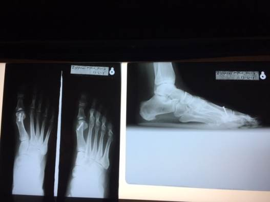 After Photo of Foot