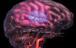Το εγκεφαλικό επεισόδιο «προτιμά» όλο και νεότερα άτομα
