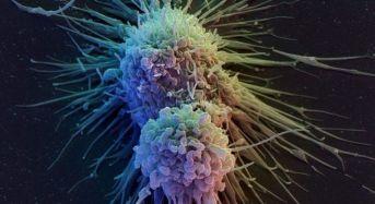 Καρκίνος του ήπατος: Τα οκτώ σημάδια ενός από τους πιο θανατηφόρους καρκίνους