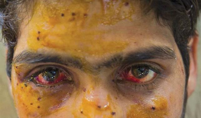 This boy was hit in the face by a pellet gunshot.  (KL Image: Bilal Bahadur)