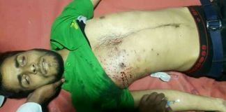 Kakapora youth hit by pellets