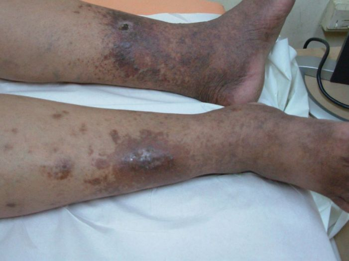 Black Spots on your Leg and Foot: Be Careful
