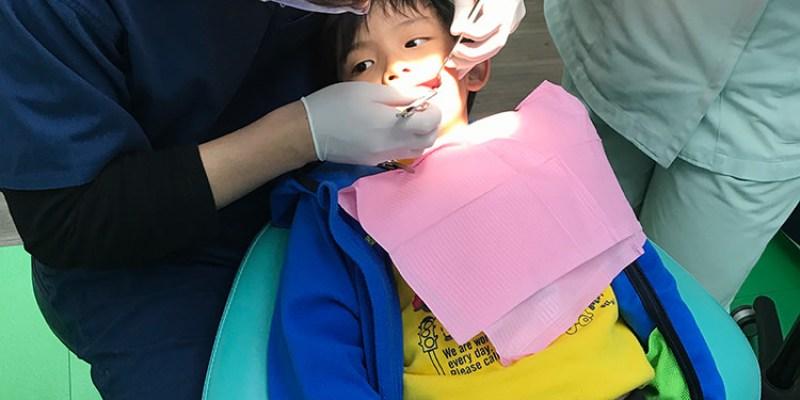 保護牙齒五部曲 | 窩溝封填幫大忙