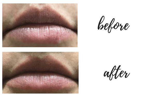 BEST LIP PLUMPER TOOL?! | Kate Loves Makeup | Kate Loves Makeup