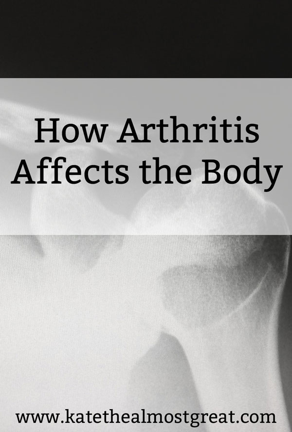 I'm an arthritis patient, and something that surprises my friends and family is that it doesn't just affect my joints. In this blog post, I'm sharing how arthritis affects the body.