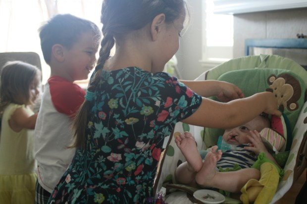 Three siblings paying with baby Peter with midline cleft lip/palate and SPINT2 genetic mutation