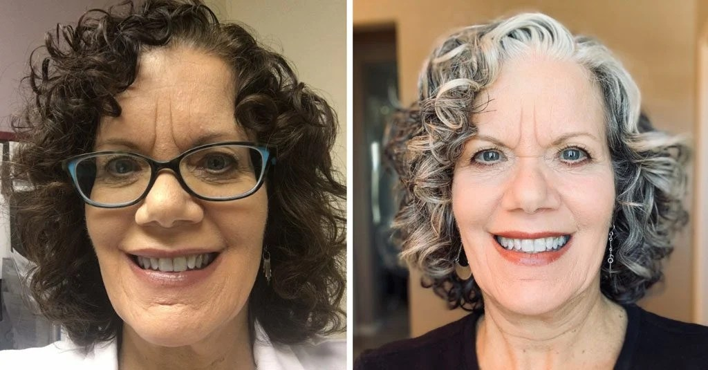 before and after image of woman with curly gray hair from dark