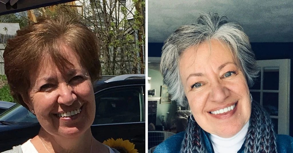 image of woman before and after gray hair