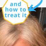 image of yellowing gray hair