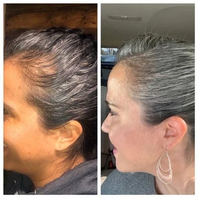 image of hair regrowth