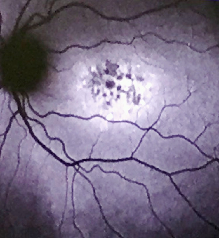 my detailed eye picture from hospital
