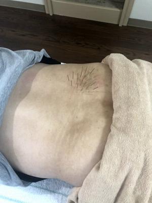 慢性腰痛の鍼治療