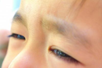頭痛(偏頭痛、群発性頭痛)と目(眼精疲労、近視など)