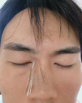 眼精疲労と鍼灸2