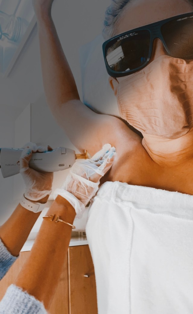 Katwalksf at City Laser Clinic getting laser hair removal on her armpits, Where to Go For Laser Hair Removal in San Francisco