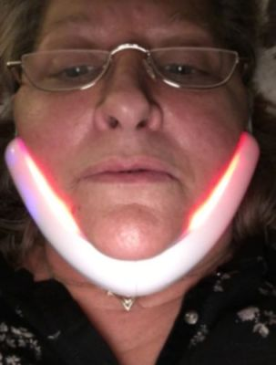 V Line Face Slimming Double Chin Massager photo review