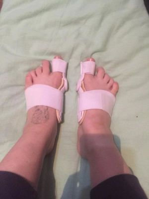 Bunion Splint Corrector photo review