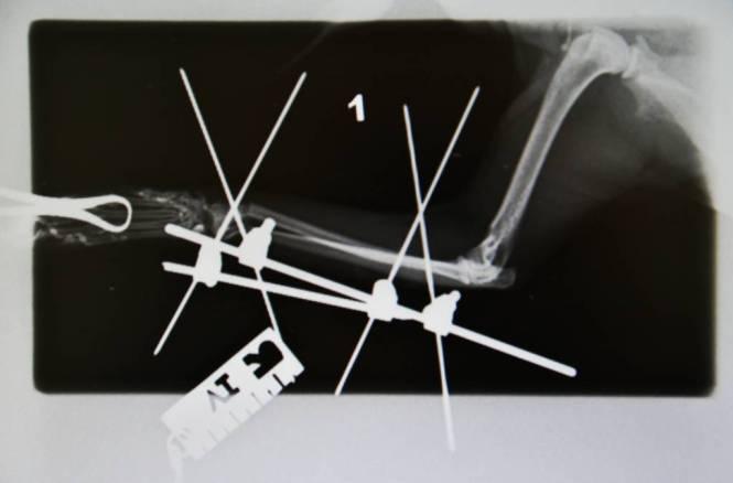 leg after surgery