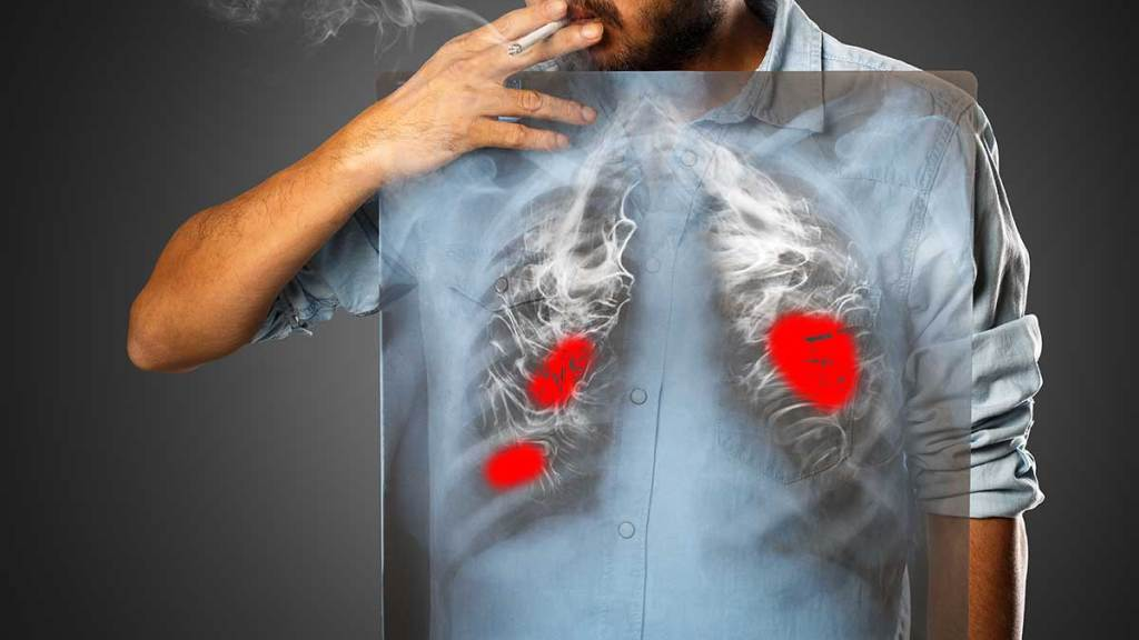 Lungenkrebs mit Künstlicher Intelligenz bekämpfen