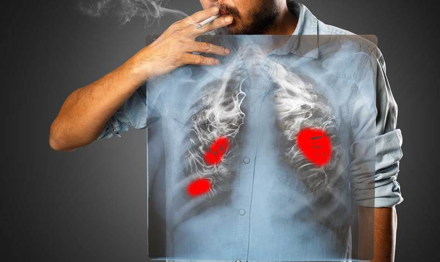 KI findet Lungenkrebs auf Computertomografien