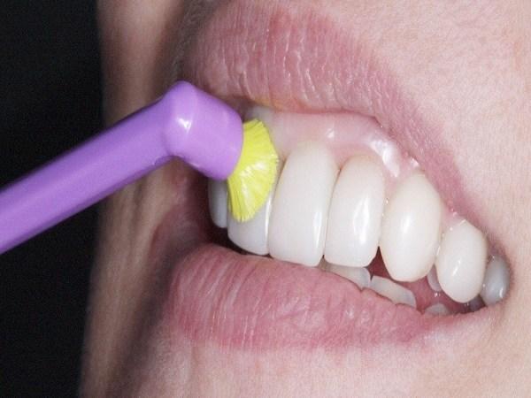 Kodėl tokia svarbi jūsų burnos sveikata?