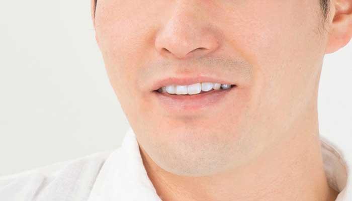 男性ニキビのイメージ画像
