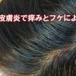 頭皮の脂漏性皮膚炎で悩むイメージ画像