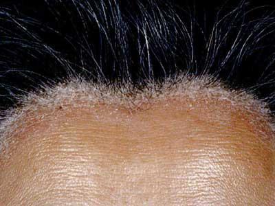 頭部の脂漏性皮膚炎の画像
