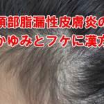 頭部脂漏性湿疹で悩む女性のイメージ画像