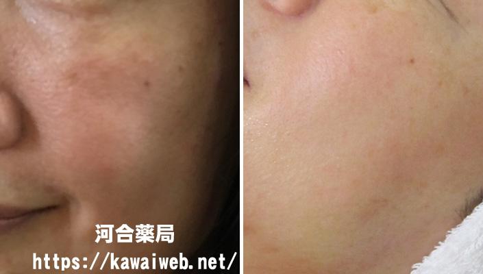 オゾナを使ってアトピー性皮膚炎が改善した写真