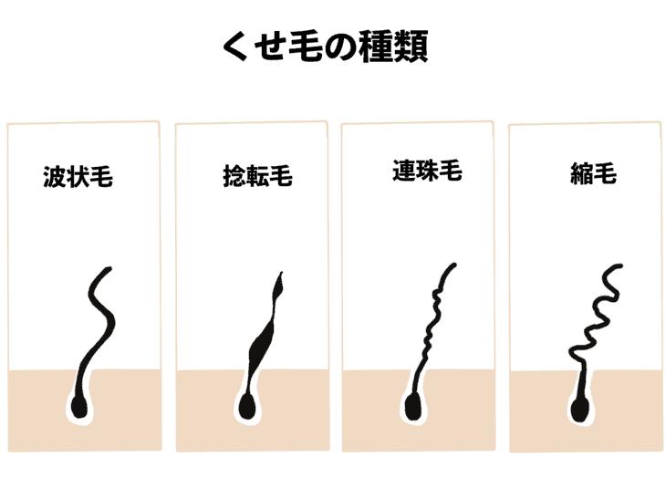 くせ毛のうねりの種類