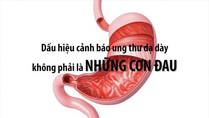 trieu-chung-ung-thu-da-day