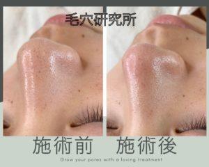 鼻スッキリコース症例写真