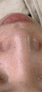 鼻スッキリコース症例