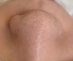 毛穴エステ症例