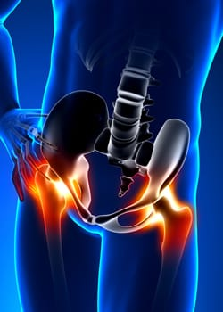 lower-extremities-hip-pain