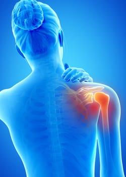 upper-extremities-shoulder